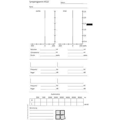 Tympanogramm-Vordrucke für verschiedene Tympanometer